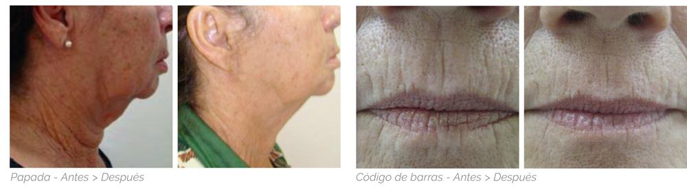 Resultados tratamiento carboxiterapia facial